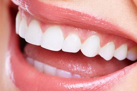 歯を白く美しくしたい!